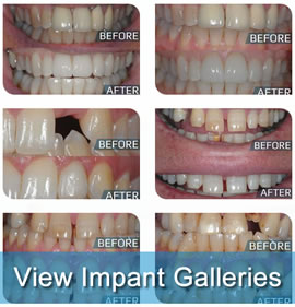 Galleries of Dental Implants